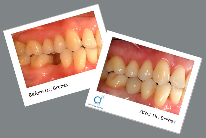 Dental Implant Costa Rica Before and After