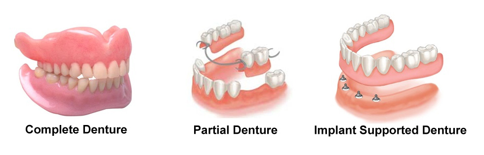 Costa Rica Dentures - Types