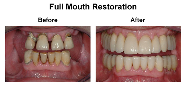 Costa Rica Full Mouth Restoration