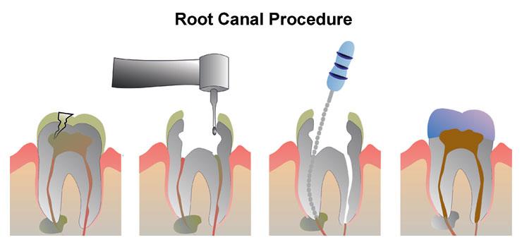 Tratamiento de Nervio en Costa Rica - Advance Dental