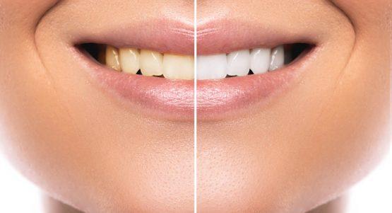 teeth whitening in Costa Rica