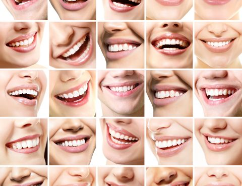 mouth restoration