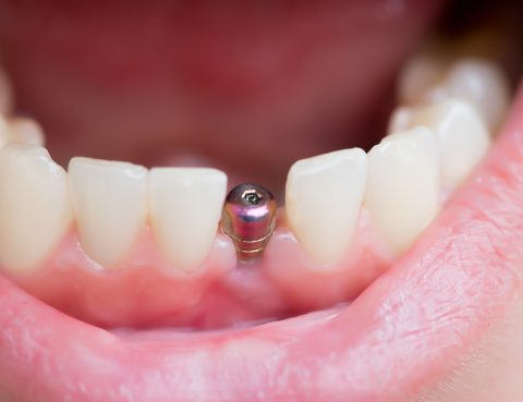 bridge vs implant