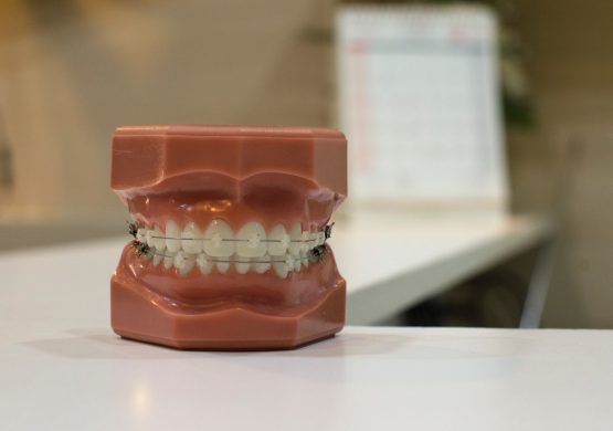 Dental Inlays and Onlays in Costa Rica