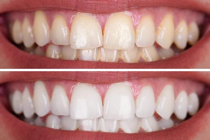 Blanqueamiento Dental Costa Rica