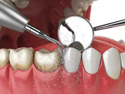 Evaluaciones y Limpiezas Dentales en Costa Rica