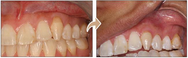 Procedimiento Pinhole - Antes y Después